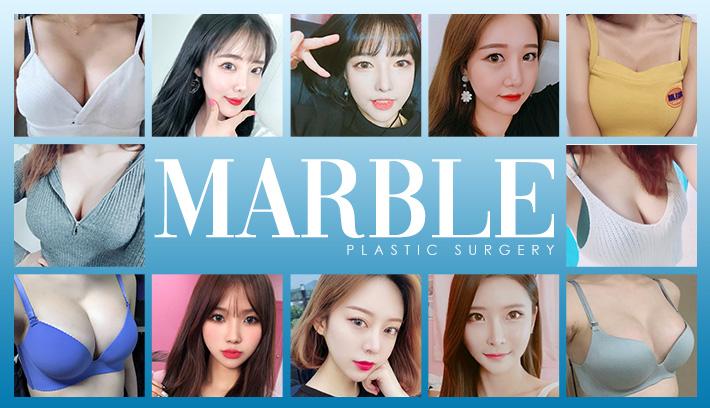 マーブル整形外科とは?症例写真紹介【韓国美容整形外科・皮膚科クリニック】